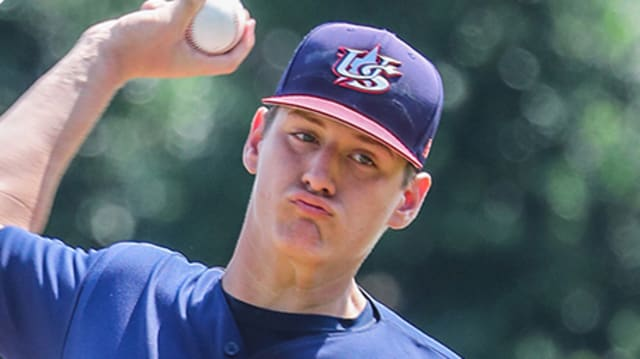 Top pitching prospect Kelley out with injury